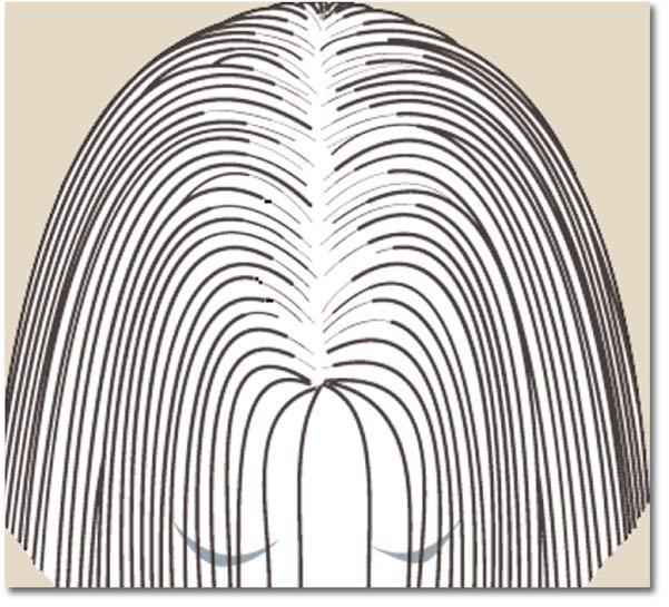 Chute de cheveux androgénétique chez la femme 2