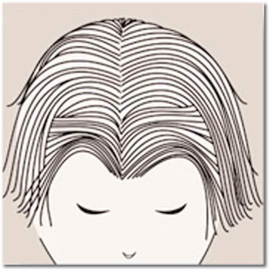 Chute de cheveux androgénétique chez la femme 7