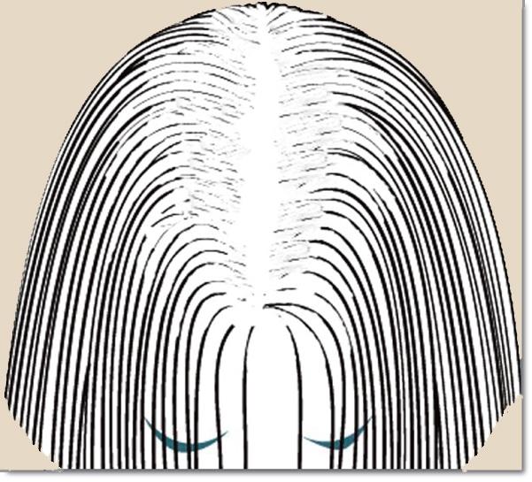 Chute de cheveux androgénétique chez la femme 3