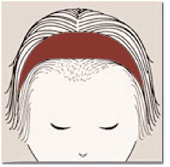 Chute de cheveux androgénétique chez la femme 8