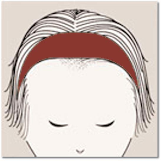 Chute de cheveux androgénétique chez la femme 9