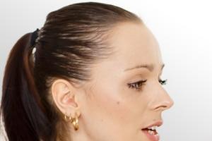 Chute par traction des cheveux ou par trichotillomanie