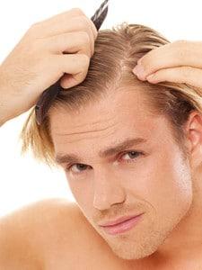 Cheveux fragiles qui tombent homme