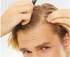 chute de cheveux grave