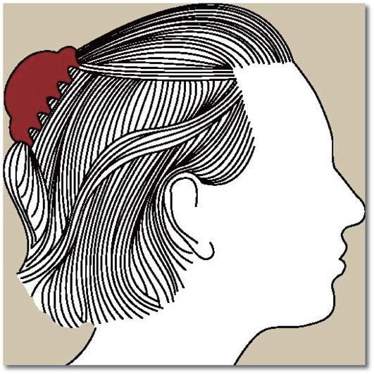 Chute de cheveux androgénétique chez la femme 4