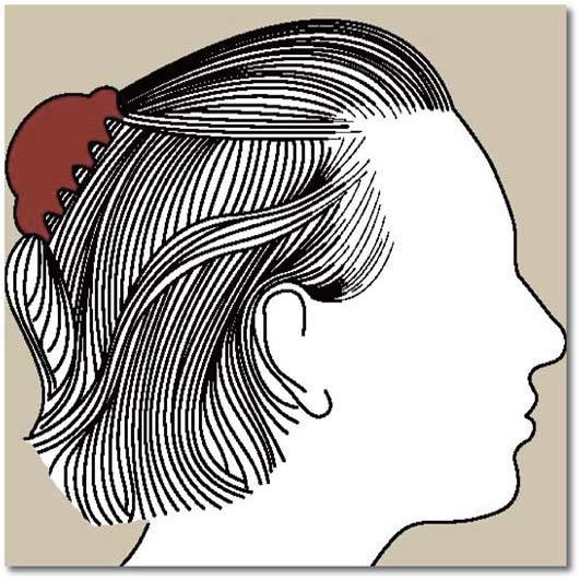 Chute de cheveux androgénétique chez la femme 5