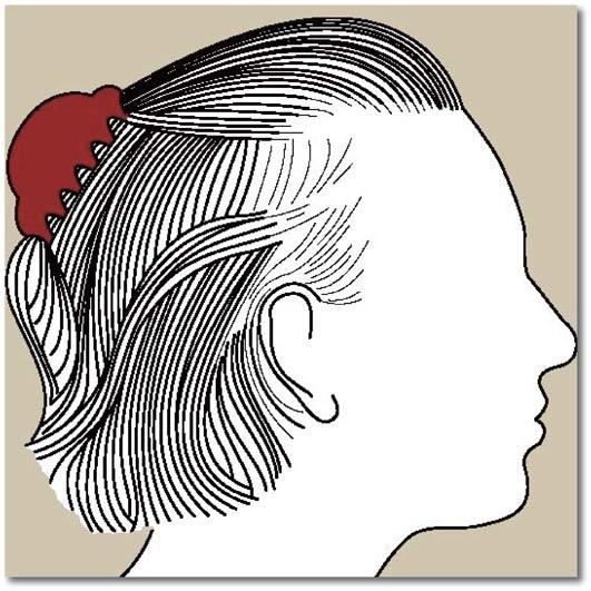 Chute de cheveux androgénétique chez la femme 6