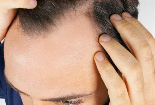 Hypertension et chute de cheveux androgénétique