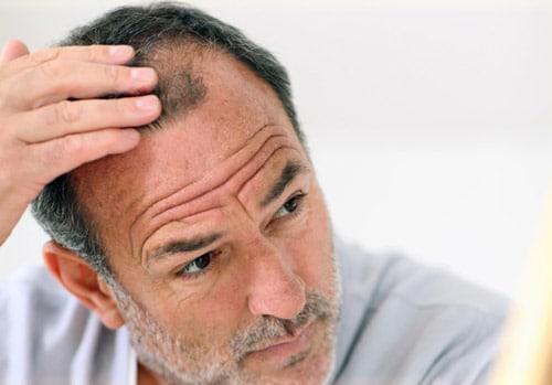 Calvitie et maladies coronariennes