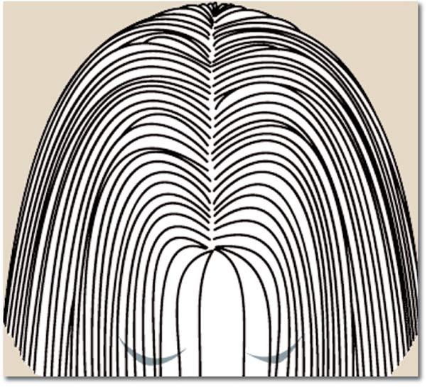 Chute de cheveux androgénétique chez la femme 1