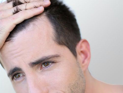 Comment les Sérums 6R et 7R vont-ils prévenir la perte de mes cheveux ?