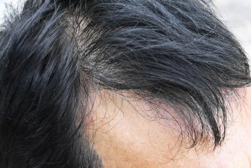 Que peut m apporter un s rum clauderer anti chute cheveux for Perte de cheveux homme