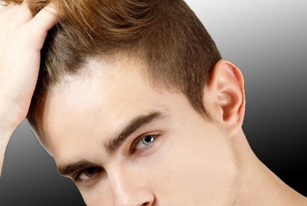 Quand parler de chute de cheveux?