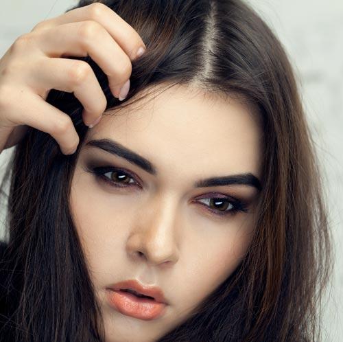 alopecie-jeune-fille