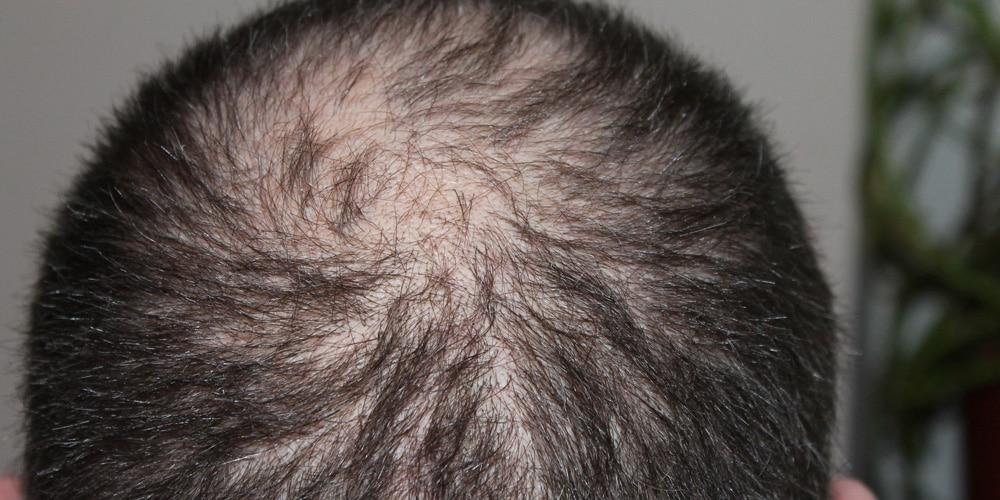 Comment les sérum 6r et 7r vont-ils transformer mon cheveu malade en cheveu sain?