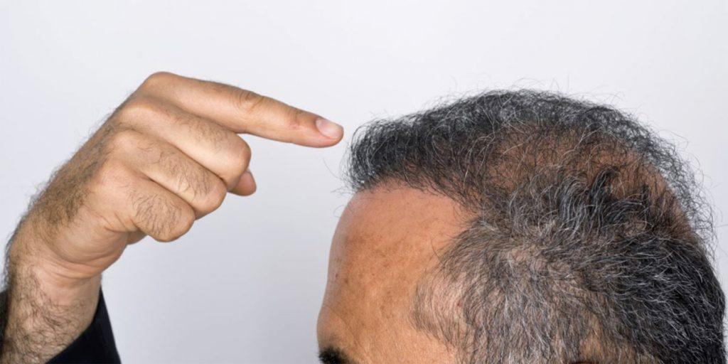L'alopécie : causes, conséquences et solutions