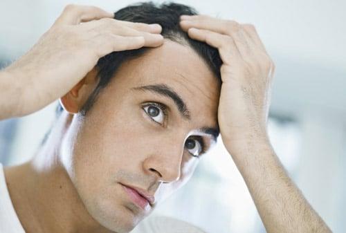 Mes cheveux tombent : que faire?