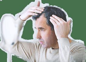 Chute de cheveux androgénétique chez l'homme 2