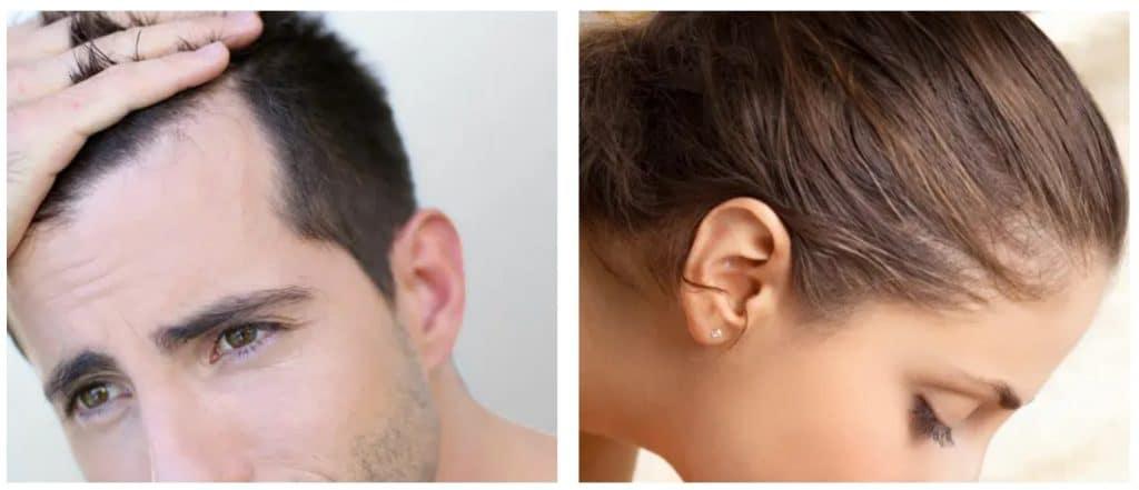 Stopper la perte de cheveux