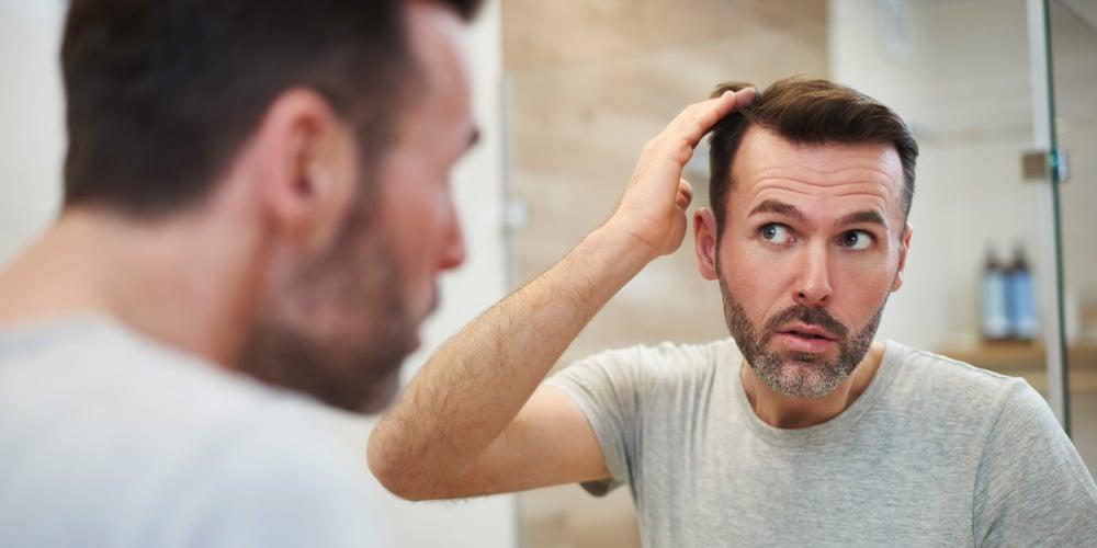 Calvitie homme : les premiers signes qui doivent alerter